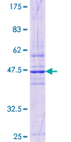 TMED1 / ST2L Protein - 12.5% SDS-PAGE Stained with Coomassie Blue.