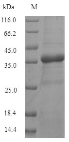 TMEM65 Protein - (Tris-Glycine gel) Discontinuous SDS-PAGE (reduced) with 5% enrichment gel and 15% separation gel.