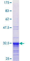 TNP1 / TP1 Protein - 12.5% SDS-PAGE Stained with Coomassie Blue.