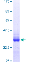 TNRC6B Protein - 12.5% SDS-PAGE Stained with Coomassie Blue.