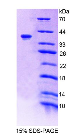 TNS1 / Tensin-1 Protein - Recombinant Tensin 1 By SDS-PAGE