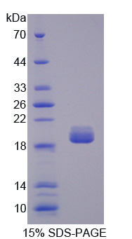 TOP3A Protein - Recombinant Topoisomerase III By SDS-PAGE