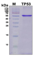 TP53 / p53 Protein - SDS-PAGE under reducing conditions and visualized by Coomassie blue staining
