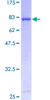 TP53 / p53 Protein - 12.5% SDS-PAGE of human TP53 stained with Coomassie Blue