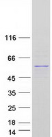 TP53 / p53 Protein - Purified recombinant protein TP53 was analyzed by SDS-PAGE gel and Coomassie Blue Staining
