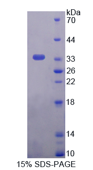 TPI1 / TPI Protein - Recombinant  Triosephosphate Isomerase 1 By SDS-PAGE