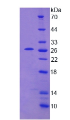 TPMT Protein - Recombinant Thiopurine Methyltransferase By SDS-PAGE