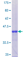 TRAK1 Protein - 12.5% SDS-PAGE Stained with Coomassie Blue.
