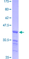 TRERF1 Protein - 12.5% SDS-PAGE Stained with Coomassie Blue.