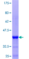 TRIM17 / RNF16 Protein - 12.5% SDS-PAGE Stained with Coomassie Blue.
