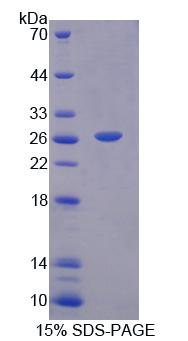 TRO / Trophonin Protein - Recombinant Trophinin By SDS-PAGE
