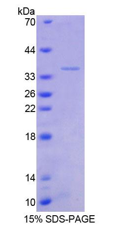 TSC22D1 / TSC22 Protein - Recombinant  Transforming Growth Factor Beta Stimulated Protein Clone 22 By SDS-PAGE