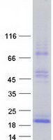 TSHB / TSH-Beta Protein - Purified recombinant protein TSHB was analyzed by SDS-PAGE gel and Coomassie Blue Staining