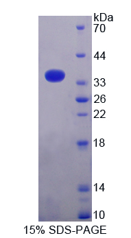 TUBB1 / Tubulin Beta 1 Protein - Recombinant  Tubulin Beta 1 By SDS-PAGE