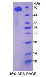 TUBD1 / Tubulin Delta Protein - Recombinant Tubulin Delta By SDS-PAGE
