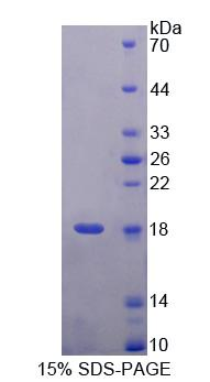 UBA52 Protein - Recombinant Ubiquitin A 52 Residue Ribosomal Protein Fusion Product 1 By SDS-PAGE