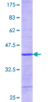 UBCH10 / UBE2C Protein - 12.5% SDS-PAGE Stained with Coomassie Blue.