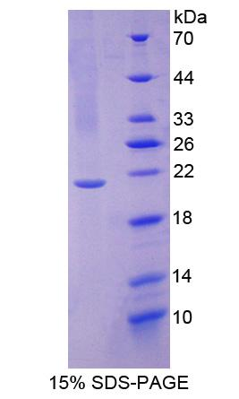 UBE2L3 / UBCH7 Protein - Recombinant Ubiquitin Conjugating Enzyme E2L3 By SDS-PAGE