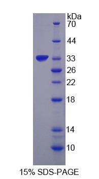 UBR4 Protein - Recombinant  Ubiquitin Protein Ligase E3 Component N-Recognin 4 By SDS-PAGE