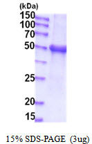 UGT1A / UGT1A1 Protein