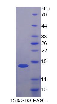 UQCRB Protein - Recombinant Ubiquinol Cytochrome C Reductase Binding Protein By SDS-PAGE