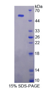 USP7 / HAUSP Protein - Recombinant  Ubiquitin Specific Peptidase 7 By SDS-PAGE