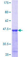 VAPB Protein - 12.5% SDS-PAGE Stained with Coomassie Blue.
