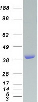 VASP Protein - Purified recombinant protein VASP was analyzed by SDS-PAGE gel and Coomassie Blue Staining