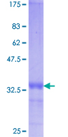 VDAC1 / PORIN Protein - 12.5% SDS-PAGE Stained with Coomassie Blue.