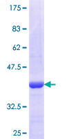 VGLL1 Protein - 12.5% SDS-PAGE Stained with Coomassie Blue.