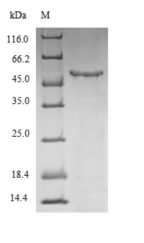 WNT5A Protein - (Tris-Glycine gel) Discontinuous SDS-PAGE (reduced) with 5% enrichment gel and 15% separation gel.