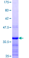 WT1 / Wilms Tumor 1 Protein - 12.5% SDS-PAGE Stained with Coomassie Blue.