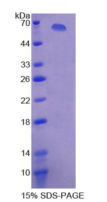 XDH / Xanthine Oxidase Protein - Recombinant  Xanthine Dehydrogenase By SDS-PAGE