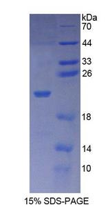 XPO1 / CRM1 Protein - Recombinant  Exportin 1 By SDS-PAGE