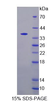 YKL39 / CHI3L2 Protein - Recombinant  Chitinase 3 Like Protein 2 By SDS-PAGE