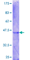 ZBTB6 Protein - 12.5% SDS-PAGE Stained with Coomassie Blue.