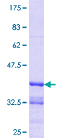 ZBTB7B / HcKrox Protein - 12.5% SDS-PAGE Stained with Coomassie Blue.