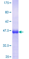 ZFYVE1 / DFCP1 Protein - 12.5% SDS-PAGE Stained with Coomassie Blue.