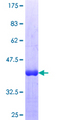 ZHX3 Protein - 12.5% SDS-PAGE Stained with Coomassie Blue.