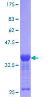 ZIC3 Protein - 12.5% SDS-PAGE Stained with Coomassie Blue.
