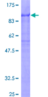 12.5% SDS-PAGE of human ZKSCAN1 stained with Coomassie Blue