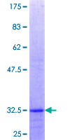 ZMPSTE24 Protein - 12.5% SDS-PAGE Stained with Coomassie Blue.