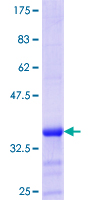 ZMYND10 Protein - 12.5% SDS-PAGE Stained with Coomassie Blue.