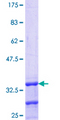 ZNF177 / PIGX Protein - 12.5% SDS-PAGE Stained with Coomassie Blue.