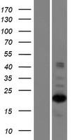 ZNF268 Protein - Western validation with an anti-DDK antibody * L: Control HEK293 lysate R: Over-expression lysate