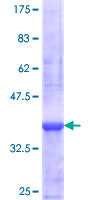 ZNF44 / GIOT-2 Protein - 12.5% SDS-PAGE Stained with Coomassie Blue.