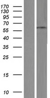 ZNF682 Protein - Western validation with an anti-DDK antibody * L: Control HEK293 lysate R: Over-expression lysate