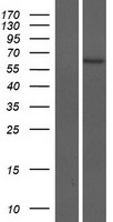 ZNF708 Protein - Western validation with an anti-DDK antibody * L: Control HEK293 lysate R: Over-expression lysate