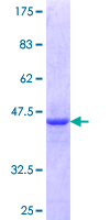 ZNF76 Protein - 12.5% SDS-PAGE Stained with Coomassie Blue.