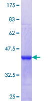ZNF8 Protein - 12.5% SDS-PAGE Stained with Coomassie Blue